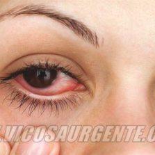 Saúde alerta sobre casos de conjuntivite em Viçosa